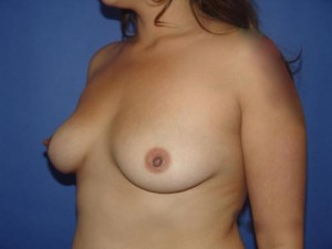 cons of breast augmentation