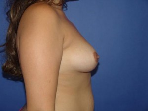 complications of breast augmentation